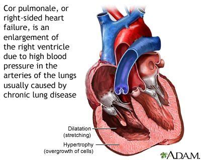 The most common signs and symptoms of heart failure are: