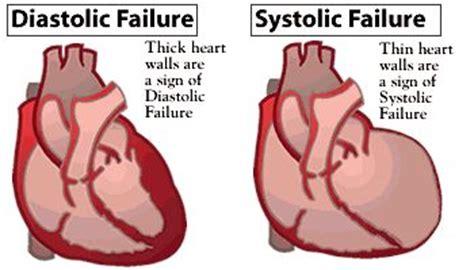 Right sided heart failure essay
